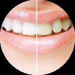 Tooth Fairy tannbleking Clinique Madeleine
